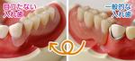 (右)隣の歯にバネを掛ける一般的な入れ歯。金属が目立ち、入れ歯だと気づかれてしまう(左)歯肉と同じ色のバネを使用するため、目立ちにくい
