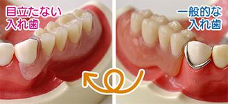 隣の歯にバネを掛ける一般的な入れ歯。金属部分が目立つ(右)/歯肉と同じ色のバネを使用するため、目立ちにくい(左)