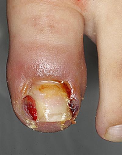 「巻き爪・陥入爪」に痛みの少ない適切な治療を