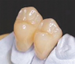 ▲CAD/CAM冠白いため、銀歯よりも目立たない。