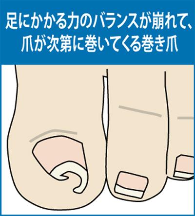 巻き爪、どう改善?