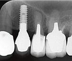 インプラント埋入後のレントゲン写真(左から2本目)