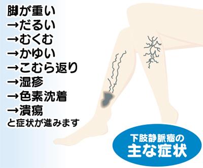 「下肢静脈瘤」レーザーで手術