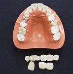 ジルコニアで作った人工歯