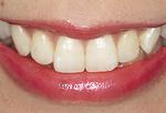 印象の良い白い歯に