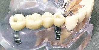 連結歯を2本で固定