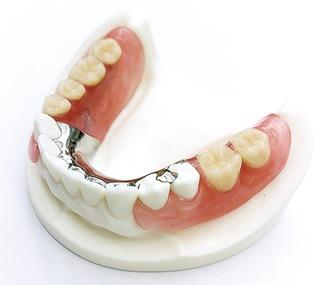 ひっかける金属が目立たない、噛める審美義歯