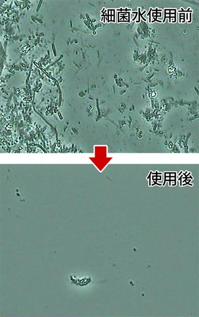 殺菌水ステリで細菌を撃退