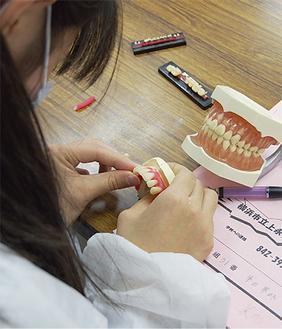 模型と比較しながら人工歯を配列
