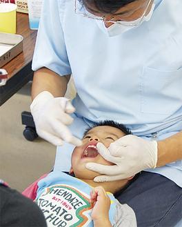 虫歯予防にフッ素も塗布した