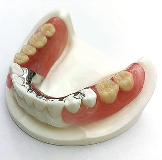 ひっかける金属が目立たない入れ歯