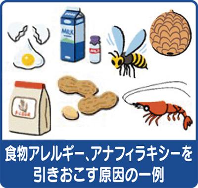 食物アレルギーとアナフィラキシー