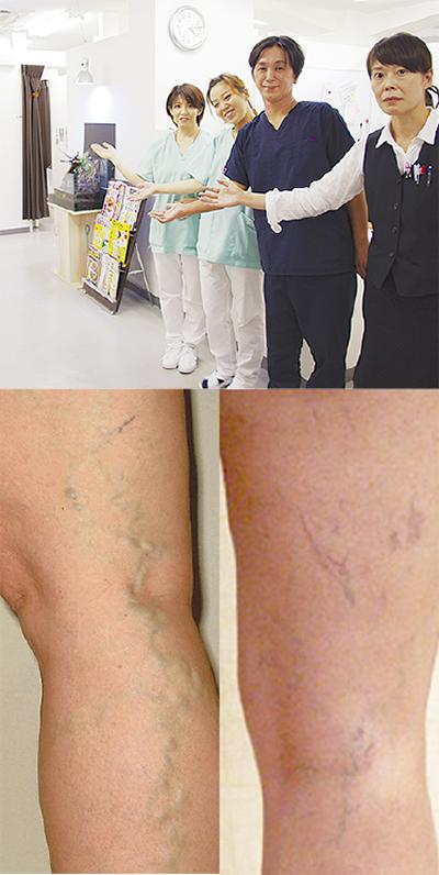 足の静脈瘤を日帰り手術