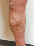 症状の一例。こうした状態は下肢静脈瘤のサイン
