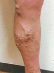 症状の一例。こうした状態は下肢静脈瘤のサインとなる