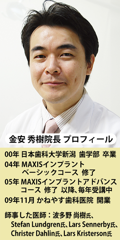 インプラントの歴史・完結編
