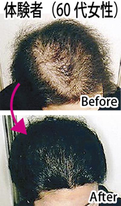 毛髪診断が初回無料