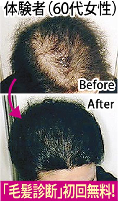安心の発毛・育毛法