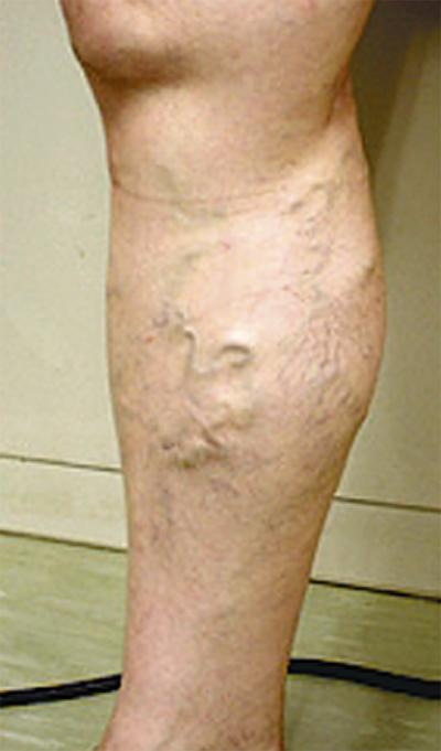 女性の半分がかかる下肢静脈瘤とは