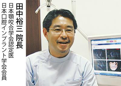 CTを活用したインプラント治療