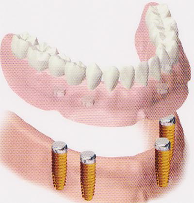 インプラントと入れ歯のコラボ