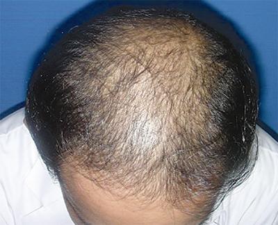 男性型脱毛症について