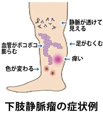 足の血管の病気