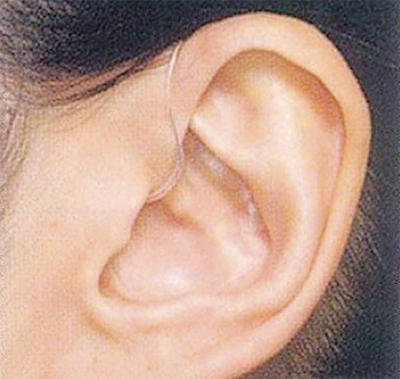 補聴器「はじめの一歩」講座