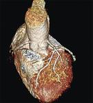 心臓MRI画像例