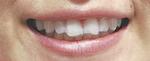 透明のため、装着中に歯が見えてもほとんど目立たない