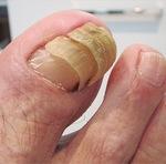 高齢者に多い爪甲肥厚症(右)