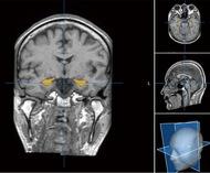 アルツハイマー病を早期発見