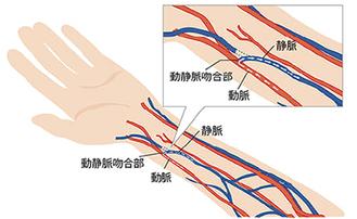 静脈と動脈をつなぐシャント
