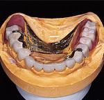 金属の見えない審美義歯