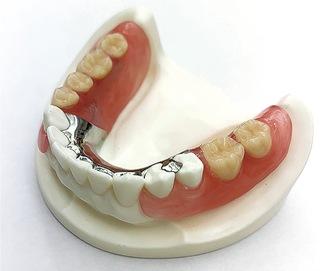 ひっかける金属が目立たない入れ歯(保険適用外)