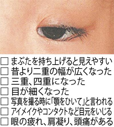 その視野の狭まり、実は眼瞼下垂?