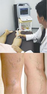 超音波検査の様子(上)と膝裏の症例写真