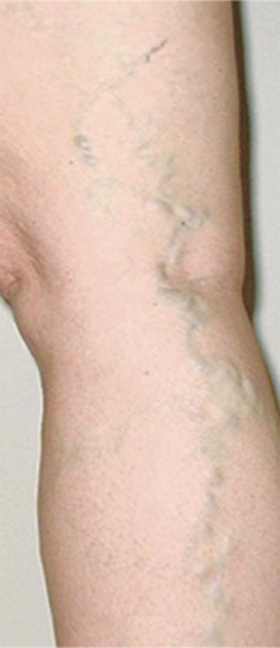 「下肢静脈瘤について」