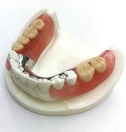 健康寿命を伸ばす「快適に噛める」入れ歯