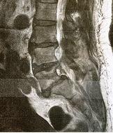 腰の痛みにも、様々な原因