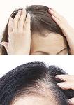「ぺたん髪」(上)や「頭皮が透けて見える」(下)など、女性の髪は加齢で細くなりがち