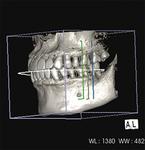 ▲より正確な診断が可能、3D立体画像