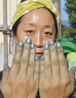 タンパク質が染まりやすく、爪は真青